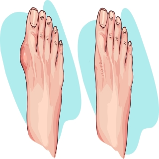 The Unbearable Gout