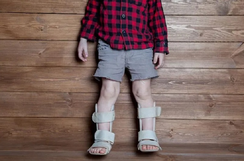 Child with Rickets