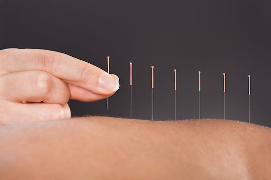 person trying acupuncture